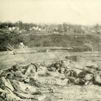 Casualties of the Battle of Corinth in Mississippi during the Civil War